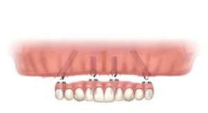 Prothese obv implantaten